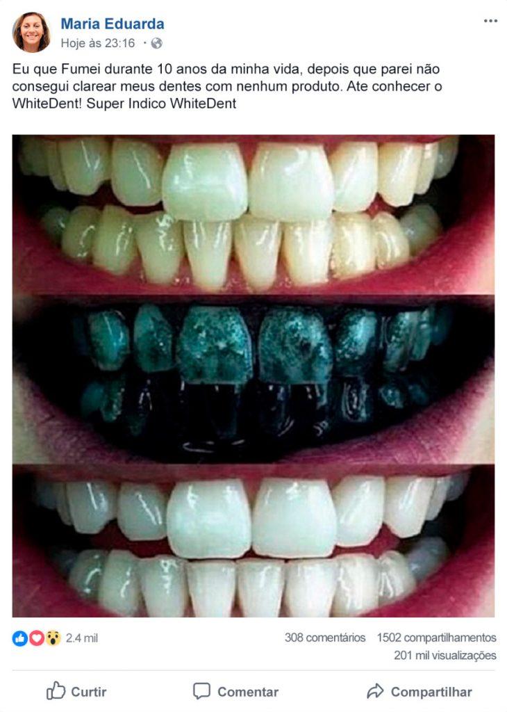White Dent